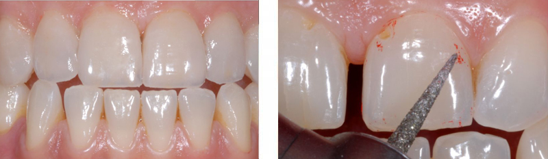 Oral fixiert